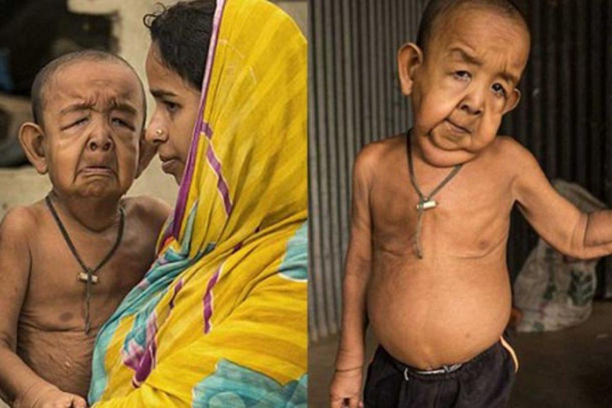 Vierj%C3%A4hriger-Progerie-1200x800.jpg